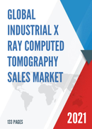 Global Industrial X ray Computed Tomography Sales Market Report 2021