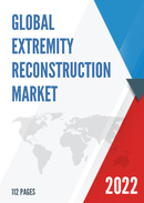 Global and Japan Extremity Reconstruction Market Size Status and Forecast 2021 2027
