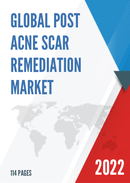 Global Post Acne Scar Remediation Market Size Status and Forecast 2021 2027