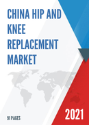 China Hip and Knee Replacement Market Report Forecast 2021 2027